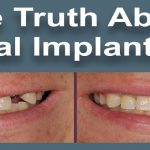 The-Truth-About-Whether-Dental-Implants-Are-Painful